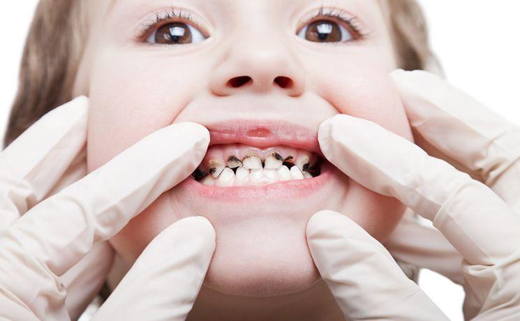 ฟันผุของเด็ก