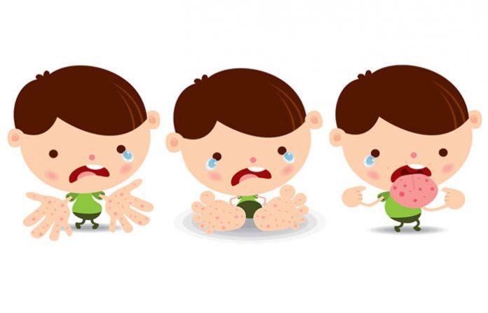 วิธีสังเกตอาการ โรคมือเท้าปาก และการดูแลรักษา