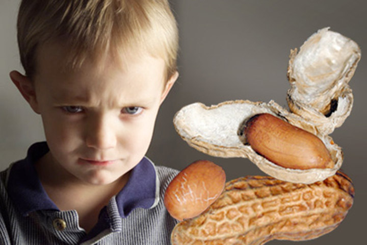 โรคภูมิแพ้ถั่วลิสงในเด็ก