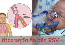 เชื้อไวรัส RSV