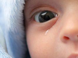 ทารกตาแฉะ น้ำตาไหล